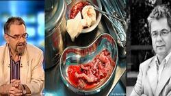 Aborterzy, czyli medyczna lista hańby - miniaturka