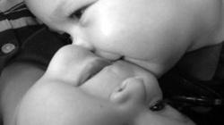 W Warszawie urodziły się bliźnięta syjamskie. Czekają na rozdzielenie - miniaturka