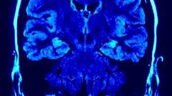 Nowe badania pokazują jak połączenia mózgowe kształtują się w macicy. ZOBACZ FILM - miniaturka