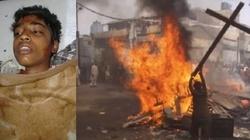 Muzułmanie oblali chłopca benzyną i podpalili. Za wiarę w Chrystusa - miniaturka