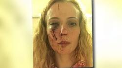 Atak w Anglii. Młodzież brutalnie pobiła kobietę, wzięli ją za Polkę - miniaturka