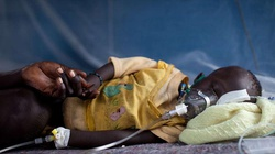 Ta choroba zabija setki tysięcy dzieci rocznie - miniaturka
