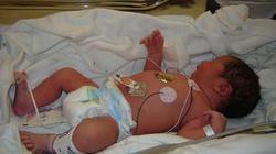 Lacjum. Szokujące dane! W czasie lockdownu trzy razy więcej porodów martwych dzieci - miniaturka
