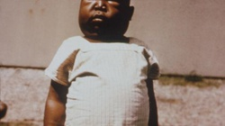 Z powodu malarii co godzinę umiera 50 dzieci - miniaturka