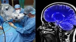 Śmierć mózgowa - napędza biznes handlu narządami!!! - miniaturka