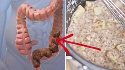 Oczyszczanie jelita grubego z toksycznych złogów - miniaturka