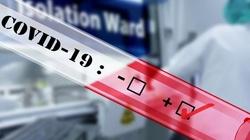 UK: Naukowcy celowo będą zakażać koronawirusem - miniaturka
