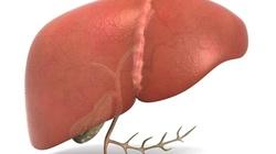 Detoksykacja wątroby, czyli dieta ODTRUWAJĄCA!!! - miniaturka