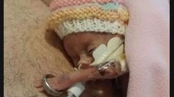 TO CUD! Była tak malutka, że obrączka ślubna wisiała jej na ramieniu. Lekarze nie dawali jej dużych szans... - miniaturka