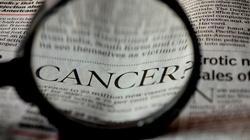 20 objawów  nowotworowych o których zapominamy! - miniaturka