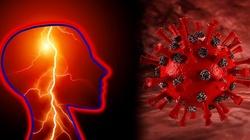 Niepokojące! Koronawirus może powodować udar u 30-latków - miniaturka