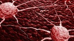 Jak rozpoznać raka? Oto pozornie trywialne, a niebezpieczne objawy... - miniaturka